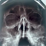 X-ray of the sinuses of the nose royalty free stock photo