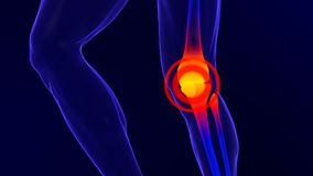 X-ray skeleton animation of knee pain