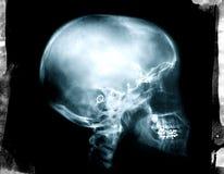 X-Ray skull  Royalty Free Stock Photo