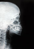 X-ray skull Royalty Free Stock Photo