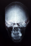 X-ray skull Stock Photos