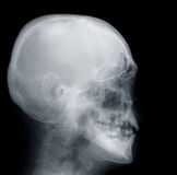 X-ray Skull. X-ray of a human skull, Negative film Royalty Free Stock Image