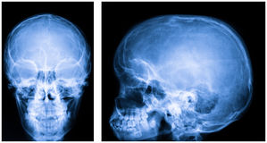 X-ray of the skull Royalty Free Stock Photos