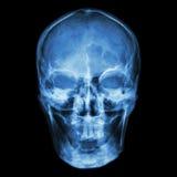 X-ray skull (Asian) Royalty Free Stock Photos