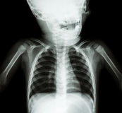 X-ray skull and chest of child Stock Image
