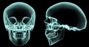 X-ray skull. X-ray front and side skull in brightness blue with black background Stock Images