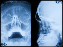 X-Ray Skull Front And Side Profile Royalty Free Stock Photo