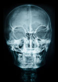 X ray of skull. royalty free stock images