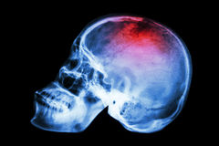 X-ray skull lateral with Stroke Stock Photography