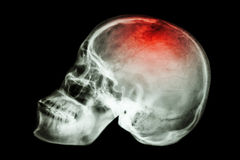 X-ray skull lateral with Stock Images
