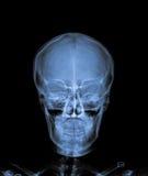 X Ray of Skull. X Ray of Skull with neck royalty free stock photography