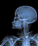 X Ray of Skull. X Ray of Skull with neck with chain and ear ring royalty free stock photography