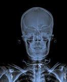 X Ray of  Skull. Royalty Free Stock Image