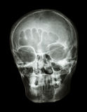 X-ray skull(oblique) of thai people Stock Image
