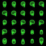 X-ray Skull Sequence. Rotated sequence of x-ray skull images Stock Photos