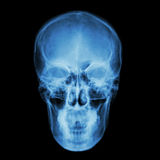 X-ray skull and Stroke ( cerebrovascular accident (CVA)  ) Stock Photo