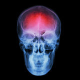 X-ray skull and Stroke ( cerebrovascular accident (CVA) ) Stock Image