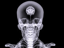 X-ray small brain Royalty Free Stock Images
