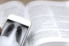 X-ray on smartphone royalty free stock photography