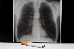 X-ray a smoker lung with ciga Stock Images