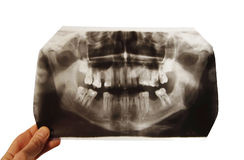 X-ray snapshot Royalty Free Stock Photo