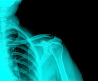 X-Ray. Of a sore shoulder royalty free stock photos