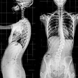 X-ray of the Spinal Column and Pelvis. Stock Images