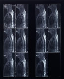 X-ray spine and neck radiography Stock Photography