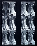 X-ray spine and neck radiography Stock Image