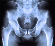 X ray of spine and pelvis. X -ray of human spine and pelvis Royalty Free Stock Images