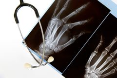 X-ray and stethoscope. An x-ray of a hand with a stethoscope isolated on white Stock Photo