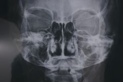 An X-ray taken on a human head showing parts of the details of the cranium human skull. A photo taken on an X-ray taken on a human head showing parts of the stock image