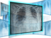 X-ray technology. Collage with a chest x-ray royalty free stock images