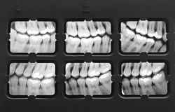 X-Ray of Teeth Royalty Free Stock Photo