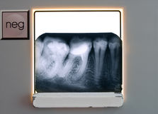 X-ray teeth diagnostics Royalty Free Stock Photo