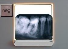 X-ray teeth diagnostics. Stomatology. A holding teeth roentgenogram royalty free stock photo