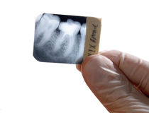 X-ray teeth diagnostics. Radiodentist holding teeth roentgenogram isolated Royalty Free Stock Image