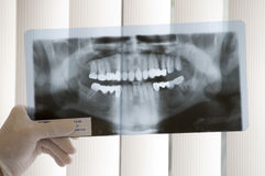 X-ray Teeth Diagnostics Stock Images
