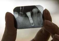 X-ray teeth diagnostics. Someone holding teeth roentgenogram isolated stock photos