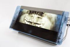 X-ray of a teeth Stock Photos