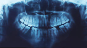 X-ray of teeth, stomatology Stock Images