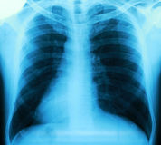 X-ray of a thorax Stock Photography