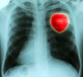 X-ray of a thorax. Red heart in thorax on x-ray film Stock Photo