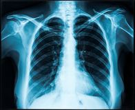 X-ray of thorax. Woman thorax x-ray for lungs examination Stock Photos