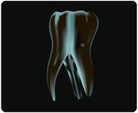 X-ray of the tooth Stock Photography