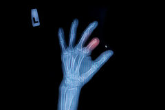 X-ray of trauma hand Stock Images