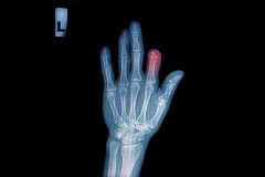 X-ray of trauma hand Royalty Free Stock Image