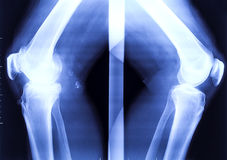 X-ray of the two bended knees Royalty Free Stock Photo
