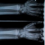 X Ray of two hands and forearm Stock Image