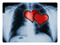 X-ray and Two Hearts. X-ray of a male chest with two illustrated red hearts Stock Images